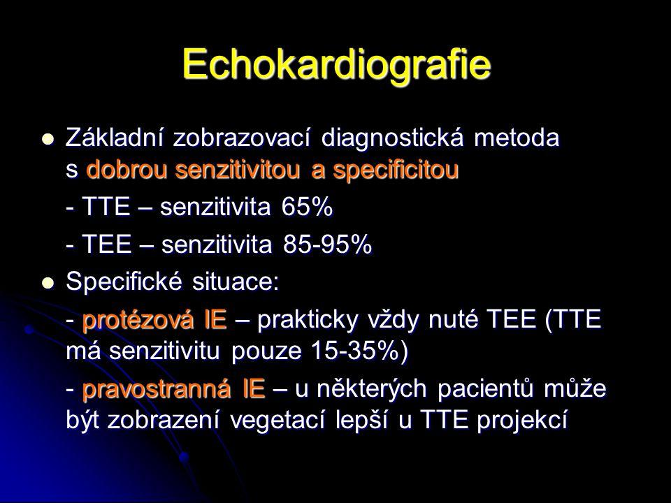 Echokardiografie Základní zobrazovací diagnostická metoda s dobrou senzitivitou a specificitou Základní zobrazovací diagnostická metoda s dobrou senzi