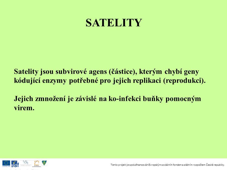 Tento projekt je spolufinancován Evropským sociálním fondem a státním rozpočtem České republiky. Investice do rozvoje vzdělávání SATELITY Satelity jso