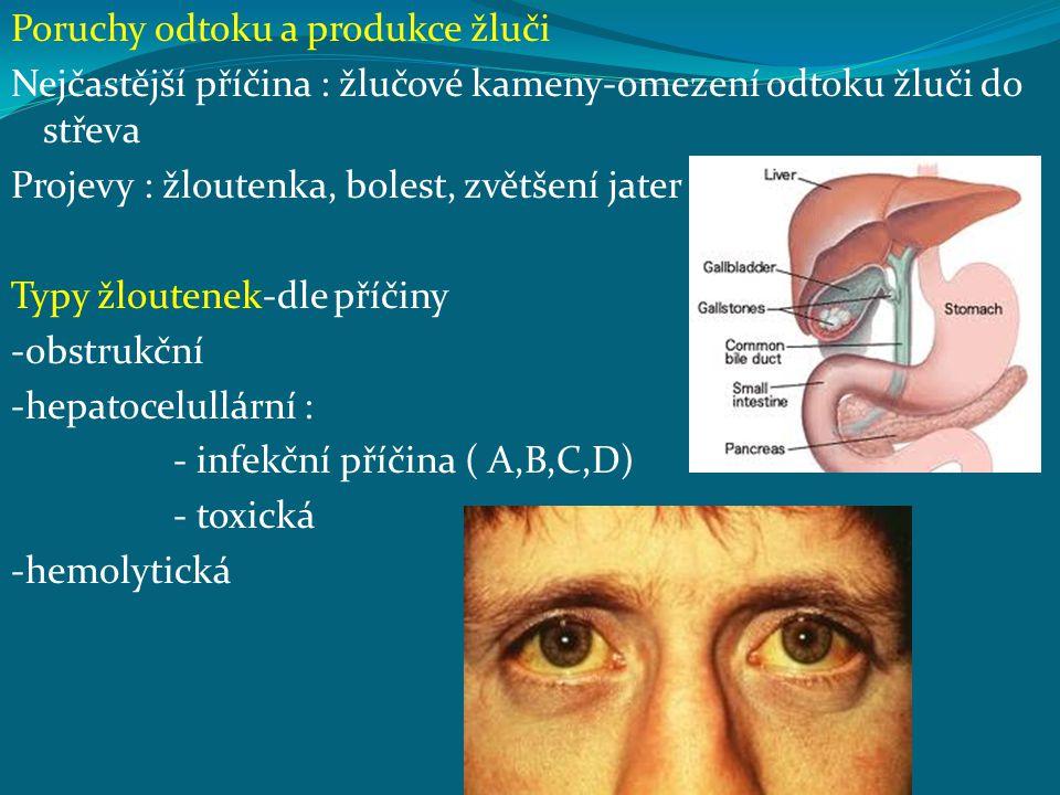 Poruchy odtoku a produkce žluči Nejčastější příčina : žlučové kameny-omezení odtoku žluči do střeva Projevy : žloutenka, bolest, zvětšení jater Typy ž