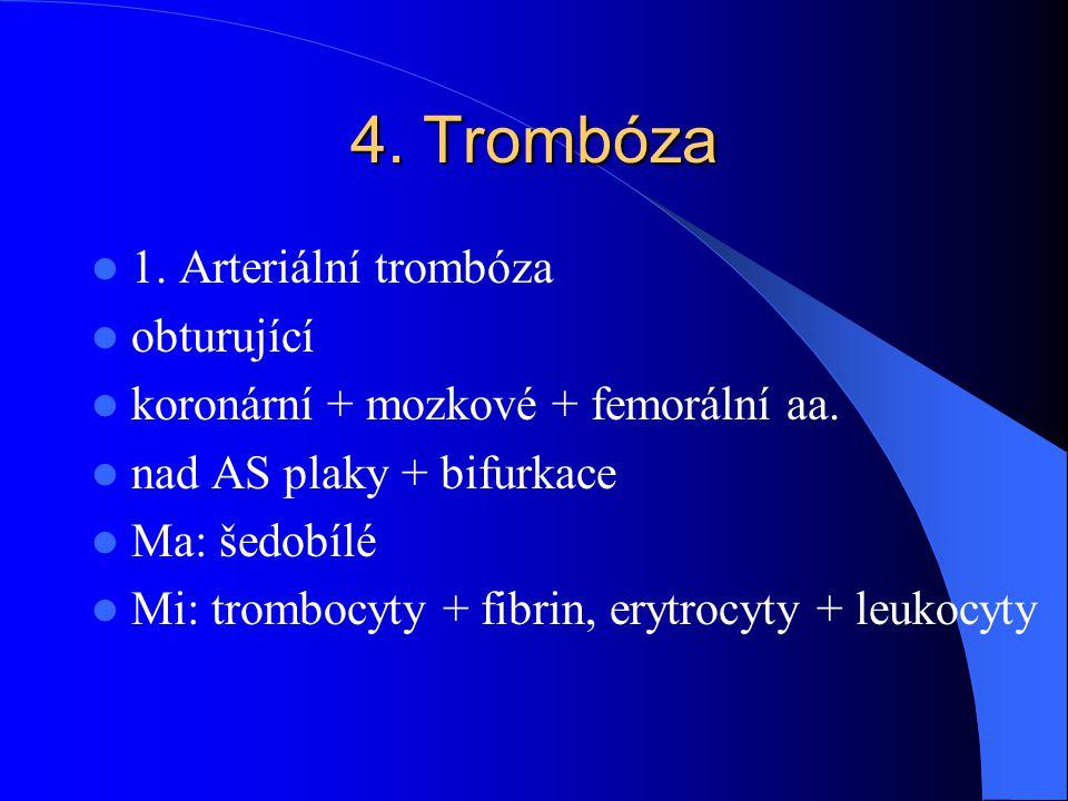 4. Trombóza 1. Arteriální trombóza obturující koronární + mozkové + femorální aa. nad AS plaky + bifurkace Ma: šedobílé Mi: trombocyty + fibrin, erytr
