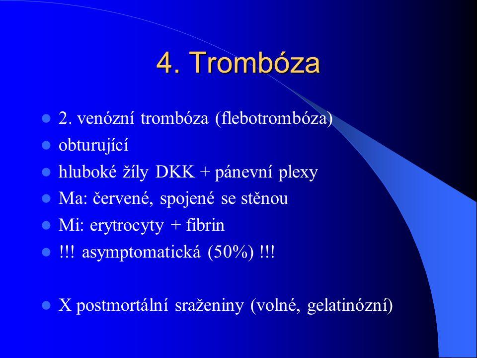 4. Trombóza 2. venózní trombóza (flebotrombóza) obturující hluboké žíly DKK + pánevní plexy Ma: červené, spojené se stěnou Mi: erytrocyty + fibrin !!!