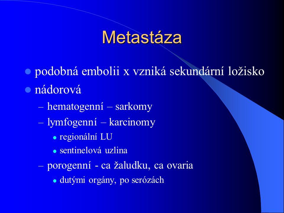 Metastáza podobná embolii x vzniká sekundární ložisko nádorová – hematogenní – sarkomy – lymfogenní – karcinomy regionální LU sentinelová uzlina – porogenní - ca žaludku, ca ovaria dutými orgány, po serózách