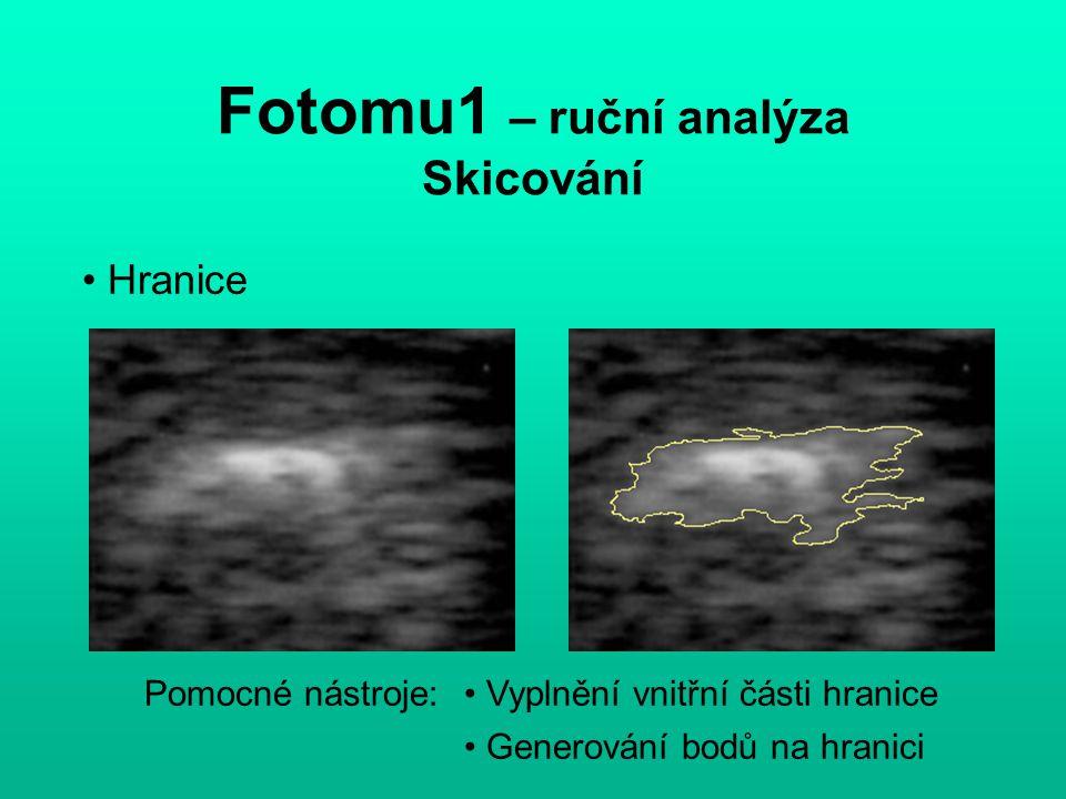 Fotomu1 – ruční analýza - Skicování 1) V konstantních intervalech Hranice - generování bodů hranicepolygon 2) Podle křivosti hranice