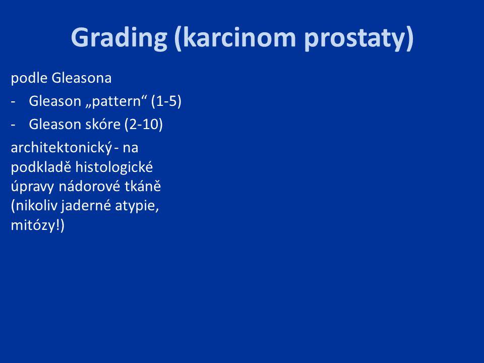"""Grading (karcinom prostaty) podle Gleasona -Gleason """"pattern"""" (1-5) -Gleason skóre (2-10) architektonický - na podkladě histologické úpravy nádorové t"""