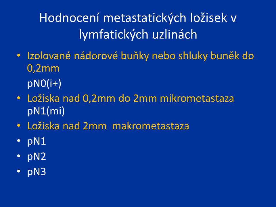 Hodnocení metastatických ložisek v lymfatických uzlinách Izolované nádorové buňky nebo shluky buněk do 0,2mm pN0(i+) Ložiska nad 0,2mm do 2mm mikromet