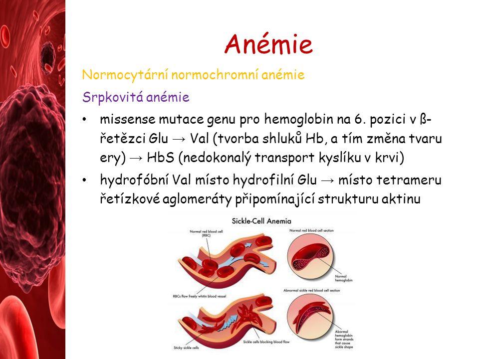 Anémie Normocytární normochromní anémie Srpkovitá anémie missense mutace genu pro hemoglobin na 6. pozici v ß- řetězci Glu → Val (tvorba shluků Hb, a