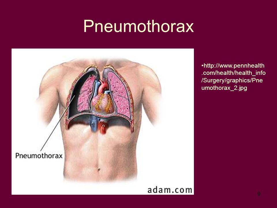 9 Pneumothorax http://www.pennhealth.com/health/health_info /Surgery/graphics/Pne umothorax_2.jpg
