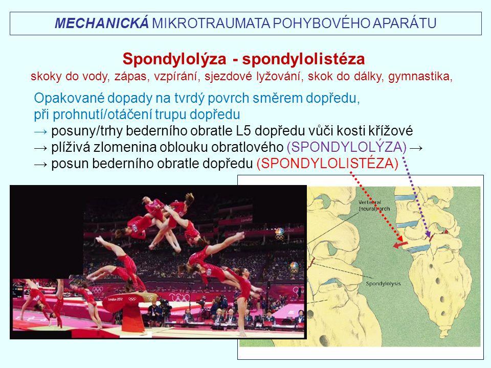 Spondylolýza - spondylolistéza skoky do vody, zápas, vzpírání, sjezdové lyžování, skok do dálky, gymnastika, Opakované dopady na tvrdý povrch směrem d