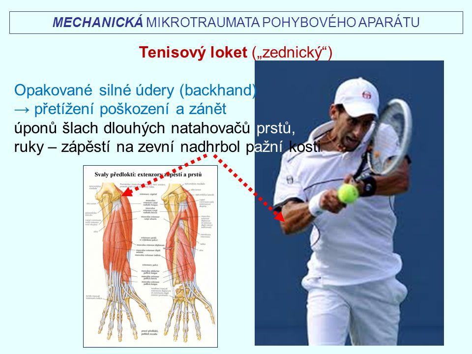 """MECHANICKÁ MIKROTRAUMATA POHYBOVÉHO APARÁTU Tenisový loket (""""zednický"""") Opakované silné údery (backhand) → přetížení poškození a zánět úponů šlach dlo"""