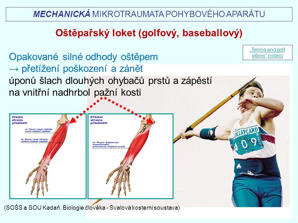 MECHANICKÁ MIKROTRAUMATA POHYBOVÉHO APARÁTU Oštěpařský loket (golfový, baseballový) Opakované silné odhody oštěpem → přetížení poškození a zánět úponů
