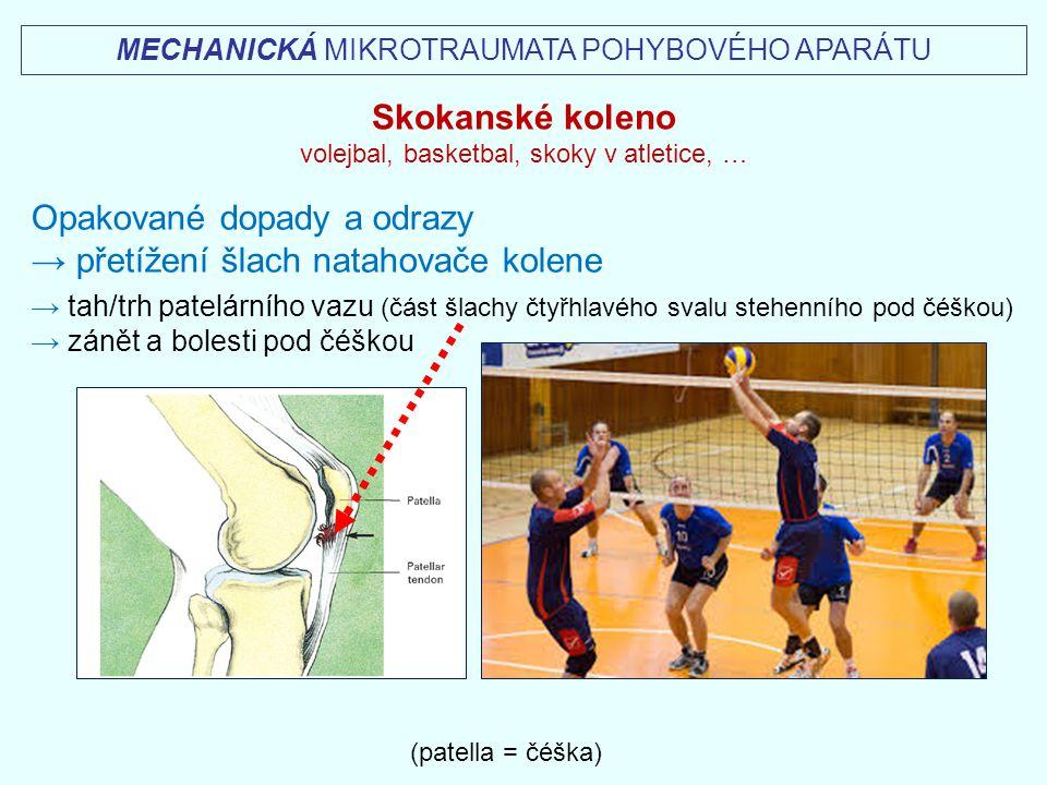 MECHANICKÁ MIKROTRAUMATA POHYBOVÉHO APARÁTU (patella = čéška) Skokanské koleno volejbal, basketbal, skoky v atletice, … Opakované dopady a odrazy → př