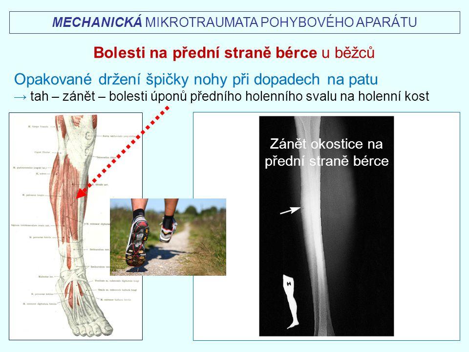 MECHANICKÁ MIKROTRAUMATA POHYBOVÉHO APARÁTU Bolesti na přední straně bérce u běžců Opakované držení špičky nohy při dopadech na patu → tah – zánět – b