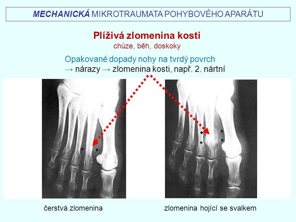čerstvá zlomenina zlomenina hojící se svalkem MECHANICKÁ MIKROTRAUMATA POHYBOVÉHO APARÁTU Plíživá zlomenina kosti chůze, běh, doskoky Opakované dopady
