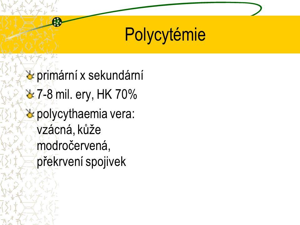Polycytémie primární x sekundární 7-8 mil. ery, HK 70% polycythaemia vera: vzácná, kůže modročervená, překrvení spojivek