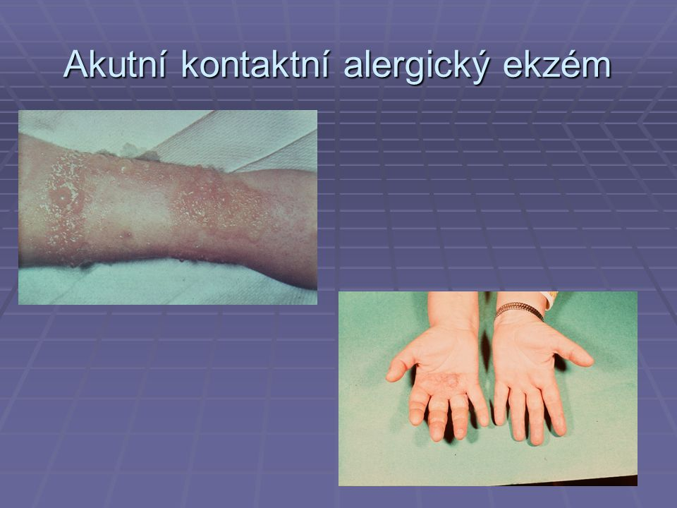 Akutní kontaktní alergický ekzém