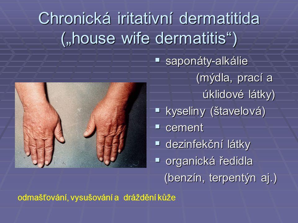 """Chronická iritativní dermatitida (""""house wife dermatitis"""")  saponáty-alkálie (mýdla, prací a (mýdla, prací a úklidové látky) úklidové látky)  kyseli"""