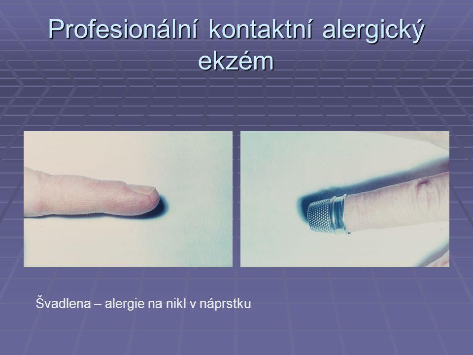 Profesionální kontaktní alergický ekzém Švadlena – alergie na nikl v náprstku