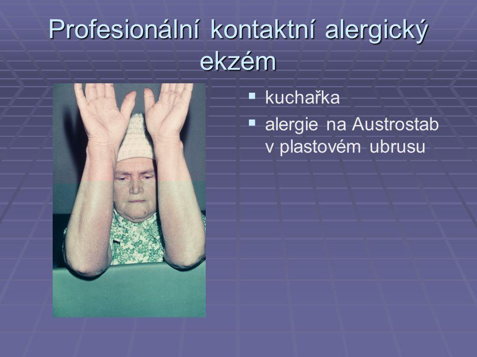 Profesionální kontaktní alergický ekzém   kuchařka   alergie na Austrostab v plastovém ubrusu
