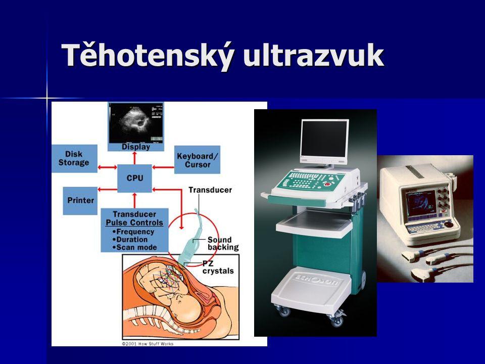 Těhotenský ultrazvuk