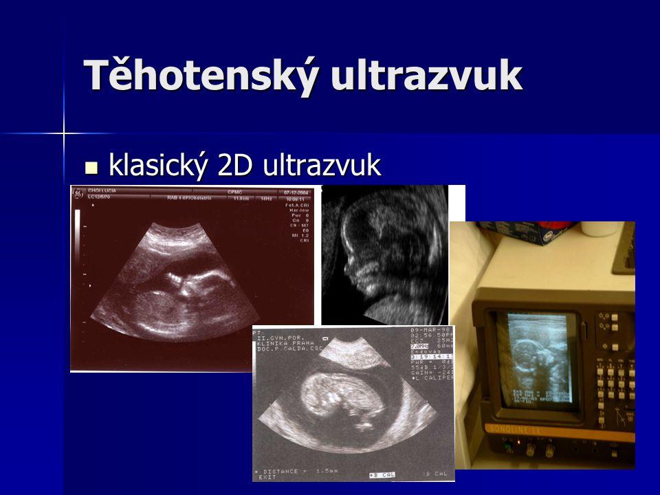 Těhotenský ultrazvuk klasický 2D ultrazvuk klasický 2D ultrazvuk
