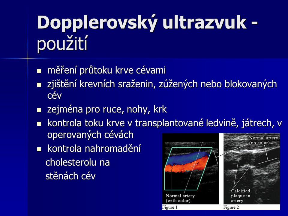 Dopplerovský ultrazvuk - použití měření průtoku krve cévami měření průtoku krve cévami zjištění krevních sraženin, zúžených nebo blokovaných cév zjišt