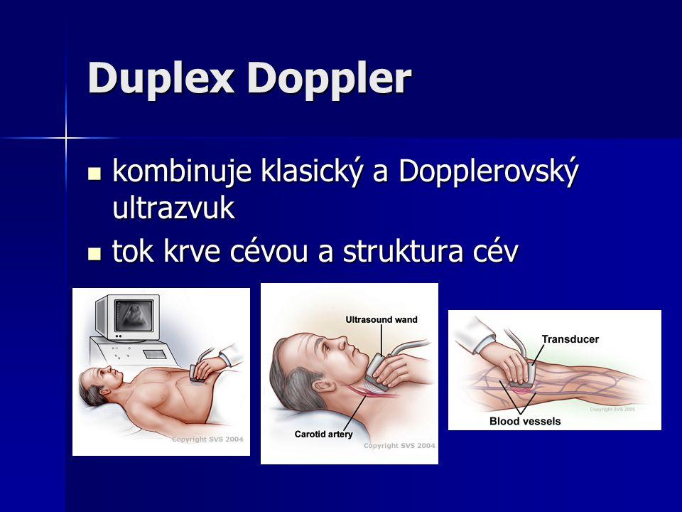 Duplex Doppler kombinuje klasický a Dopplerovský ultrazvuk kombinuje klasický a Dopplerovský ultrazvuk tok krve cévou a struktura cév tok krve cévou a