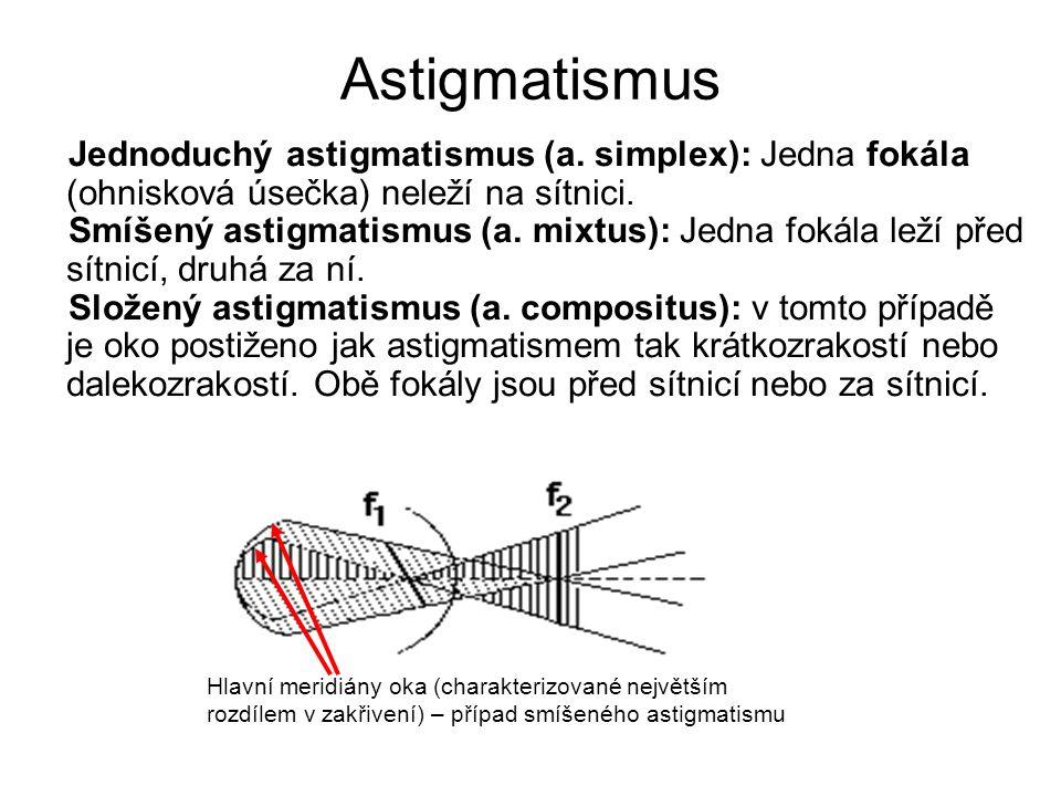 Jednoduchý astigmatismus (a. simplex): Jedna fokála (ohnisková úsečka) neleží na sítnici. Smíšený astigmatismus (a. mixtus): Jedna fokála leží před sí