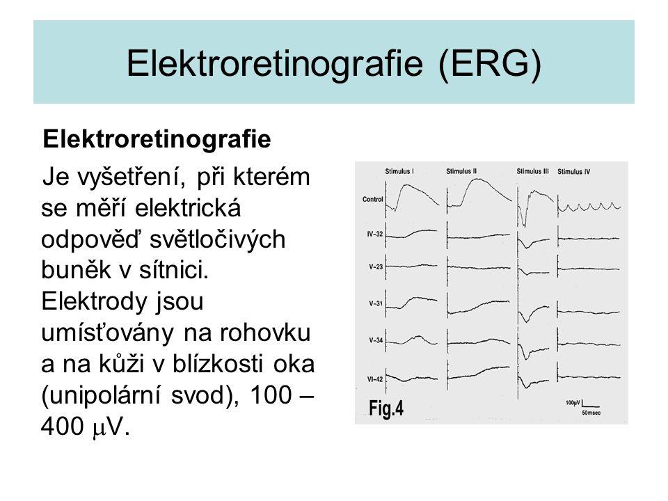 Elektroretinografie (ERG) Elektroretinografie Je vyšetření, při kterém se měří elektrická odpověď světločivých buněk v sítnici. Elektrody jsou umísťov