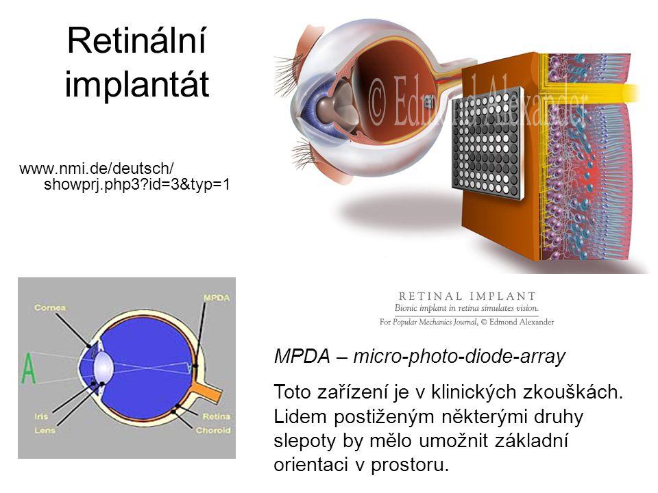 Retinální implantát www.nmi.de/deutsch/ showprj.php3?id=3&typ=1 MPDA – micro-photo-diode-array Toto zařízení je v klinických zkouškách. Lidem postižen
