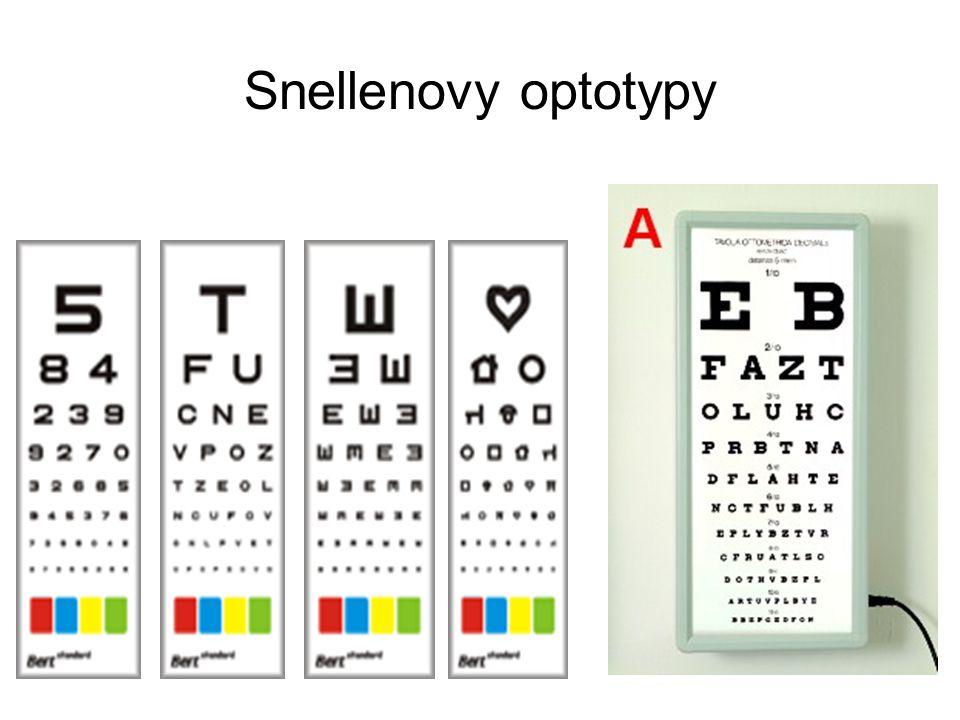 Ametropie – vady optického systému oka Emetropie: normální ( emetropické ) oko zobrazuje bodově a obrazy jsou promítány na sítnici.