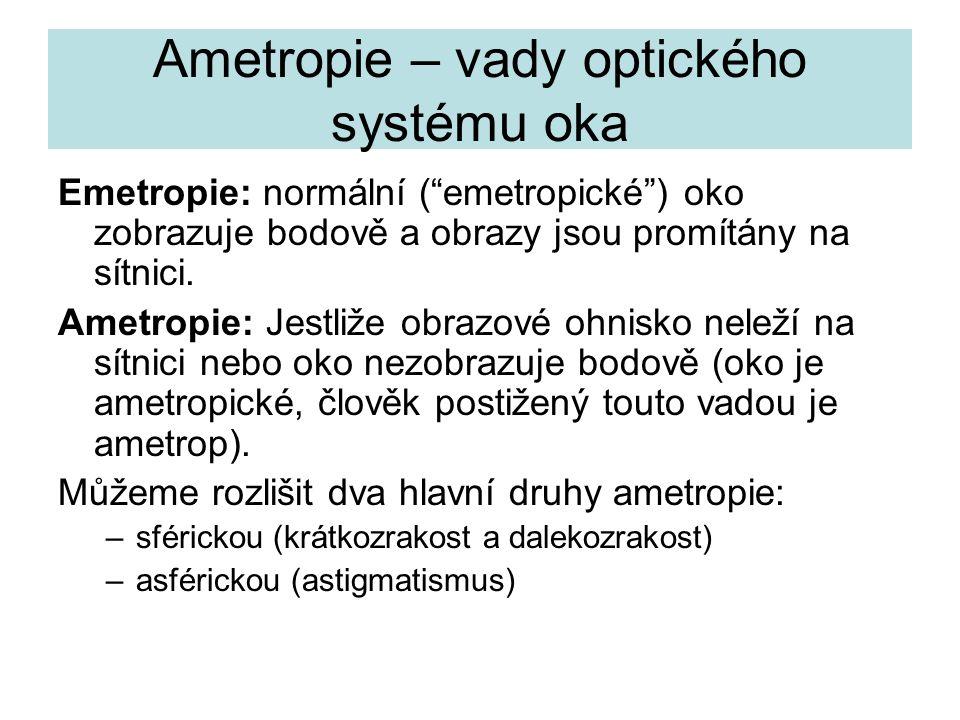 """Ametropie – vady optického systému oka Emetropie: normální (""""emetropické"""") oko zobrazuje bodově a obrazy jsou promítány na sítnici. Ametropie: Jestliž"""