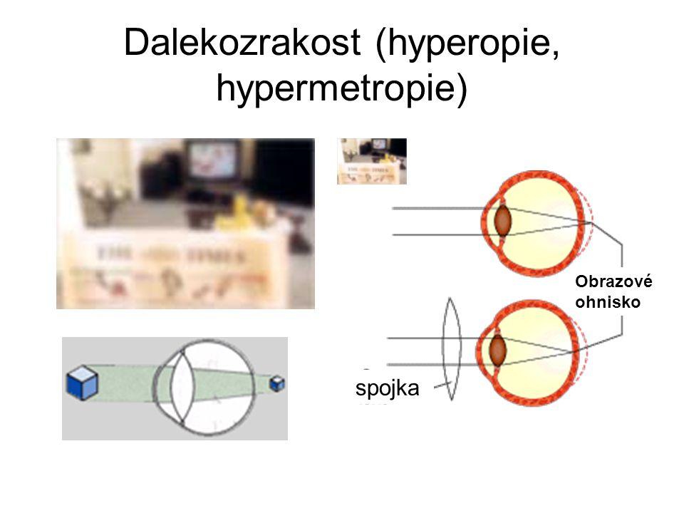 Dalekozrakost (hyperopie, hypermetropie) Obrazové ohnisko spojka