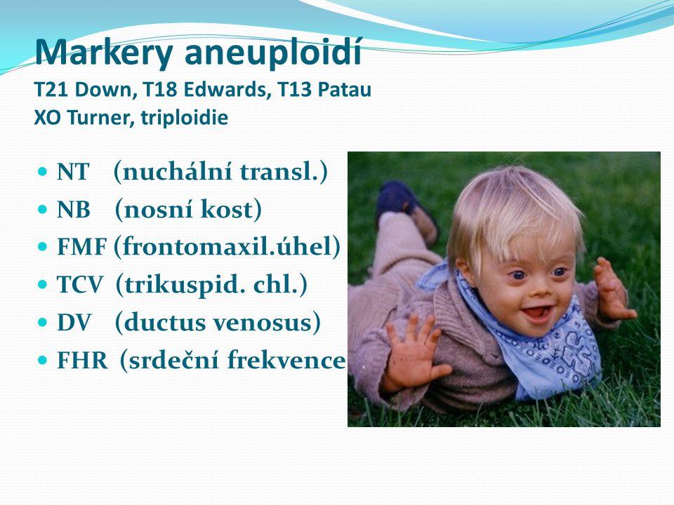 Markery aneuploidí T21 Down, T18 Edwards, T13 Patau XO Turner, triploidie NT (nuchální transl.) NB (nosní kost) FMF (frontomaxil.úhel) TCV (trikuspid.