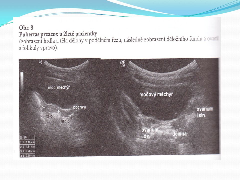 I.Trimester US scan CRL 45-84mm - 11- 13+6 wks Sonoanatomy NT – nuchal transluceny, presence NB – nasal bone, measurement of frontomaxillary angl e, tricuspidal regurgitation, ductus venosus flow, HR Combined with maternal age, biochemical screening (free b HCG,PAPP A) 1Owks Risks of trisomy T21,T18,T13