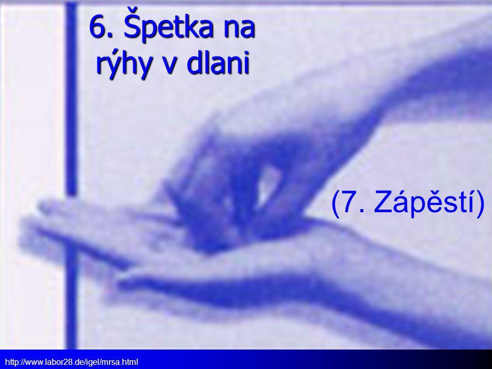 6. Špetka na rýhy v dlani http://www.labor28.de/igel/mrsa.html (7. Zápěstí)