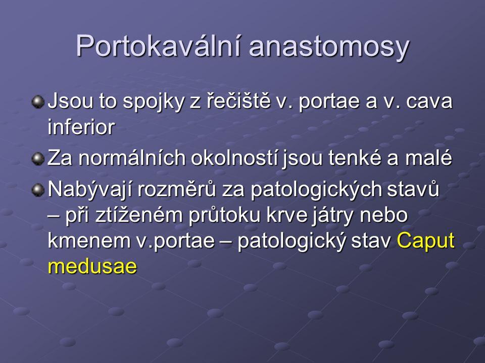 Portokavální anastomosy Jsou to spojky z řečiště v. portae a v. cava inferior Za normálních okolností jsou tenké a malé Nabývají rozměrů za patologick