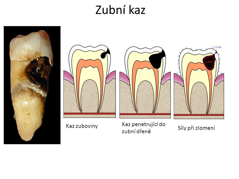 Zubní kaz Kaz zuboviny Kaz penetrující do zubní dřeně Síly při zlomení