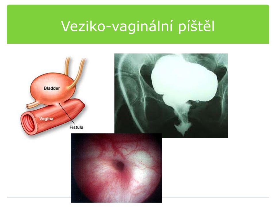 Veziko-vaginální píštěl
