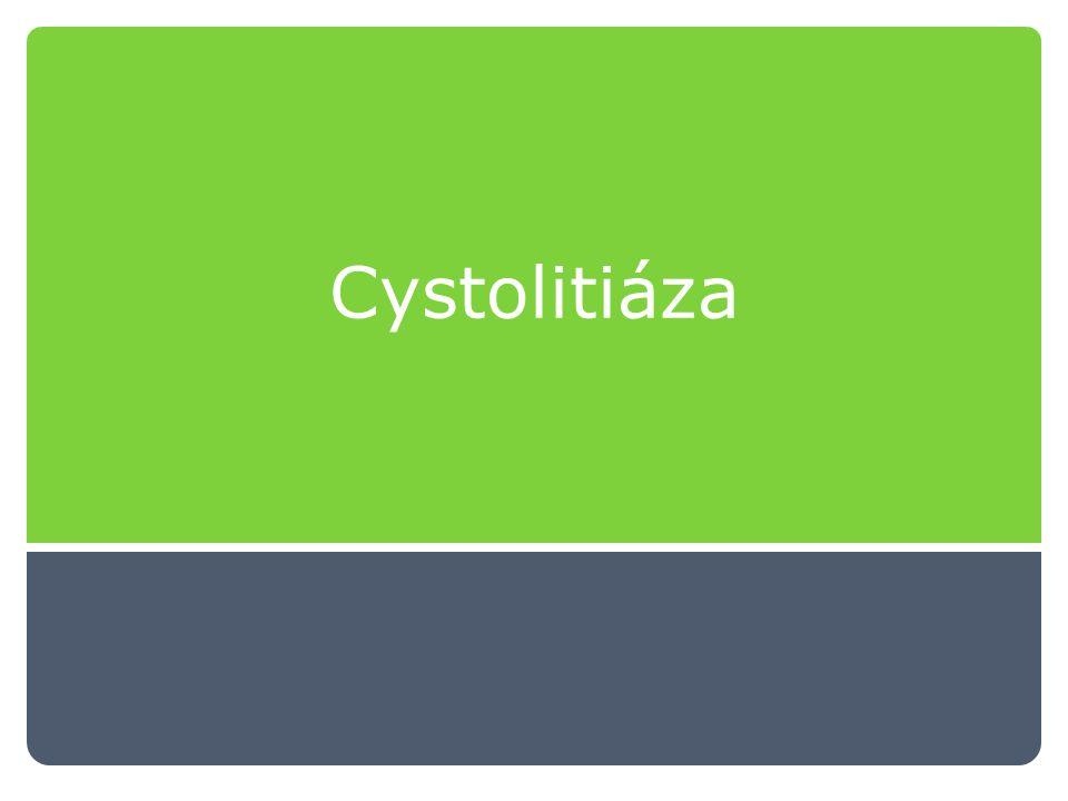 Cystolitiáza