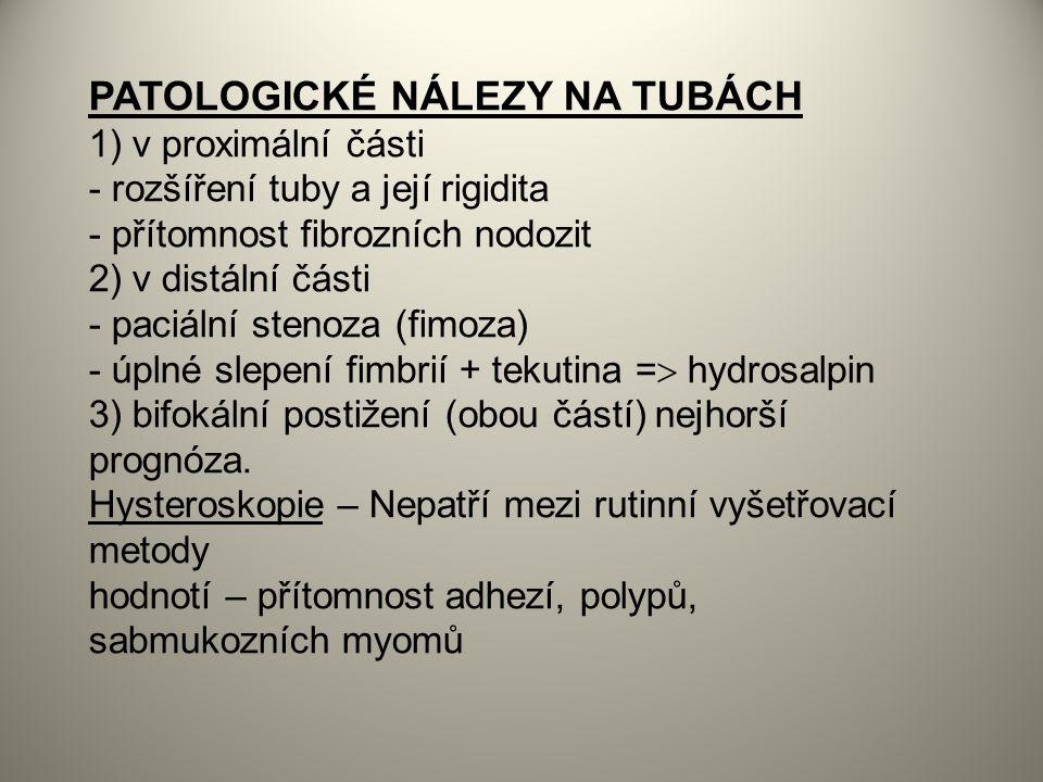 PATOLOGICKÉ NÁLEZY NA TUBÁCH 1) v proximální části - rozšíření tuby a její rigidita - přítomnost fibrozních nodozit 2) v distální části - paciální stenoza (fimoza) - úplné slepení fimbrií + tekutina =  hydrosalpin 3) bifokální postižení (obou částí) nejhorší prognóza.