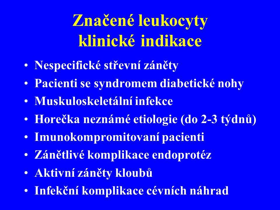 Značené leukocyty klinické indikace Nespecifické střevní záněty Pacienti se syndromem diabetické nohy Muskuloskeletální infekce Horečka neznámé etiolo