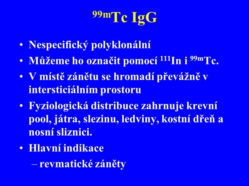 99m Tc IgG Nespecifický polyklonální Můžeme ho označit pomocí 111 In i 99m Tc. V místě zánětu se hromadí převážně v intersticiálním prostoru Fyziologi