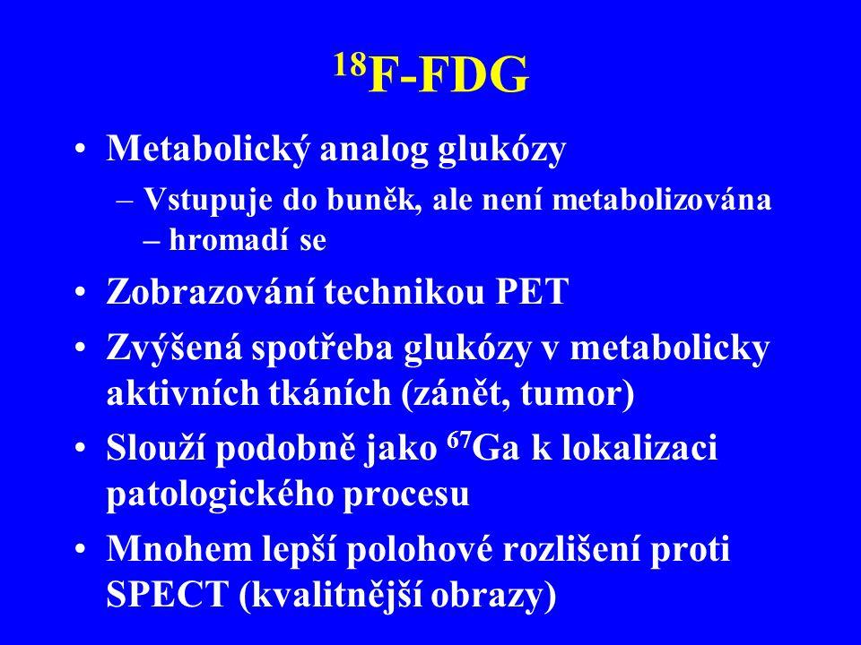 18 F-FDG Metabolický analog glukózy –Vstupuje do buněk, ale není metabolizována – hromadí se Zobrazování technikou PET Zvýšená spotřeba glukózy v meta