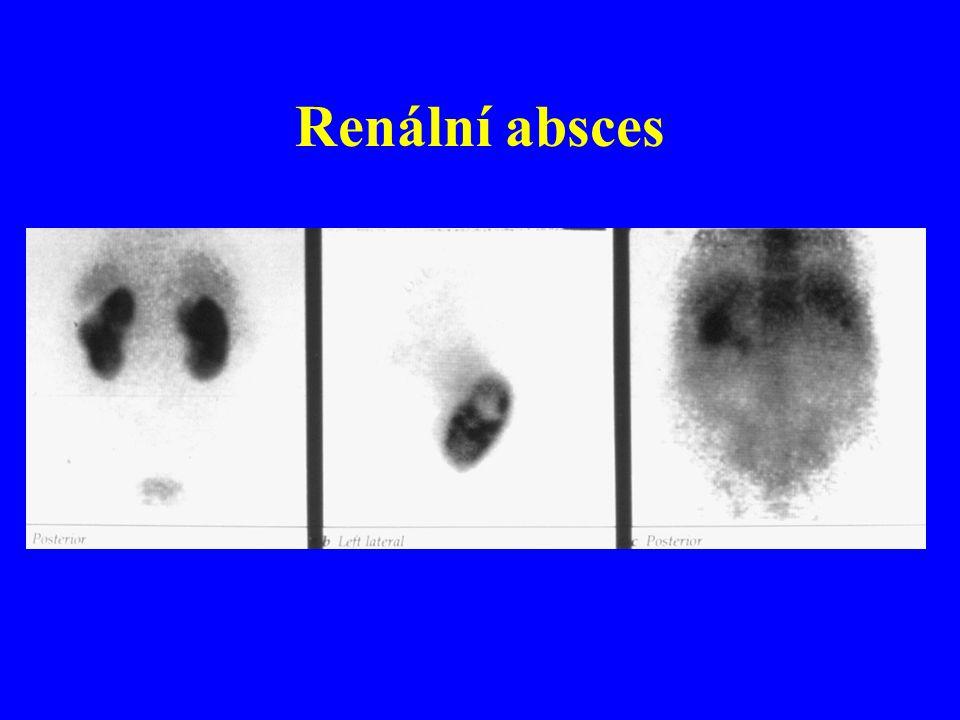 Renální absces
