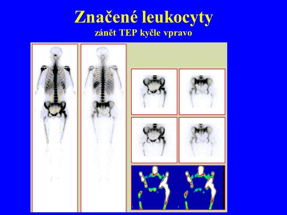 Značené leukocyty zánět TEP kyčle vpravo