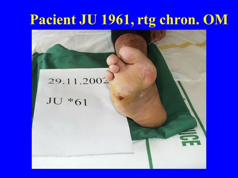 Pacient JU 1961, rtg chron. OM
