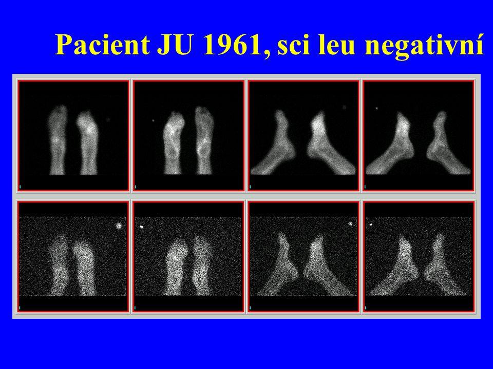 Pacient JU 1961, sci leu negativní