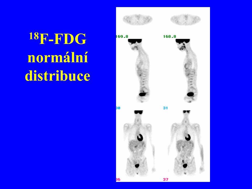 18 F-FDG normální distribuce