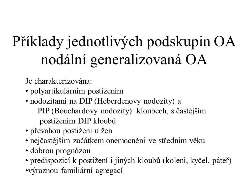 Příklady jednotlivých podskupin OA nodální generalizovaná OA Je charakterizována: polyartikulárním postižením nodozitami na DIP (Heberdenovy nodozity)