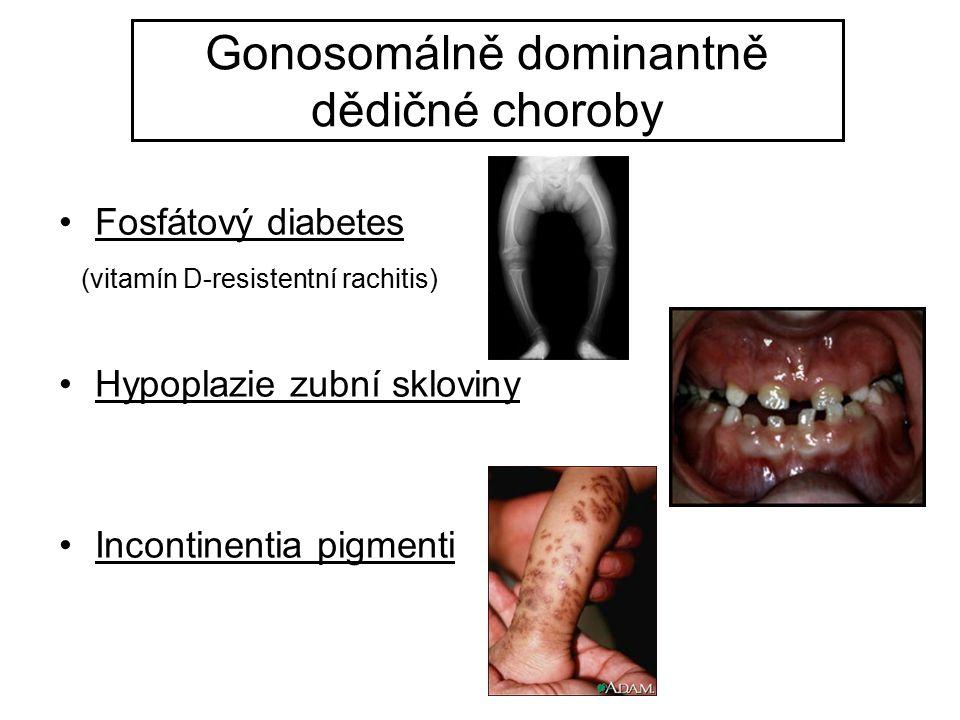 Gonosomálně dominantně dědičné choroby Fosfátový diabetes (vitamín D-resistentní rachitis) Hypoplazie zubní skloviny Incontinentia pigmenti